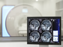 Es sind Bilder aus der Magnetresonanztomographie sowie das MRT-Gerät im Hintergrund zu sehen.