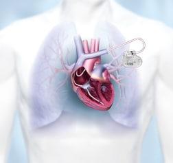 CRM, Bradykardietherapie, Herzschrittmacher, Illustration